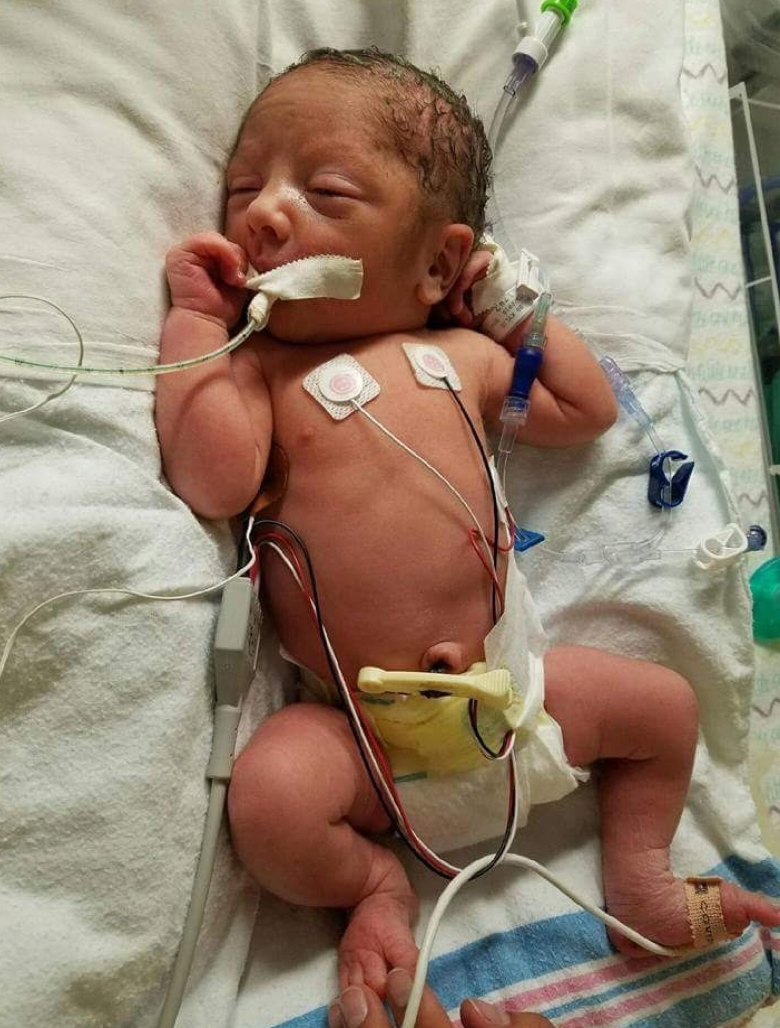 Newborn Oliver in the NICU